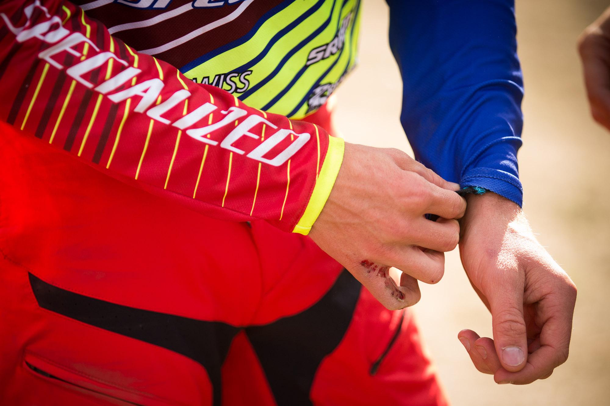 Troy Brosnans lädierte Hand. Wenn man mit solch einer Verletzung immer noch 1.8 sec langsamer als Gwin ins Ziel kommt, zeugt das von absoluter Willensstärke und Selbstbewusstsein!  Foto: Seb Schieck