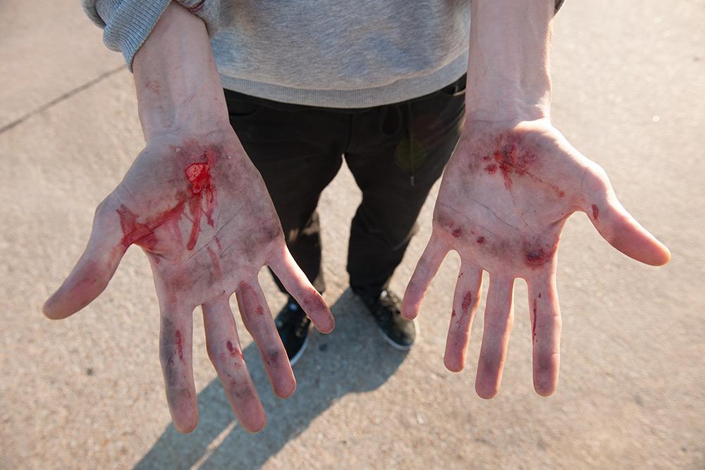 flomirtain-bleedinghands-dvstexas-march2013-barton-013